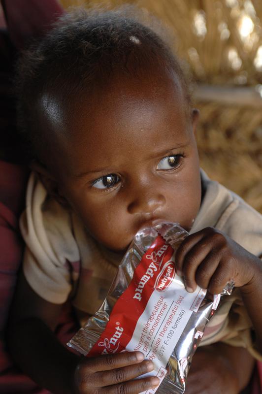 La malnutrición infantil: una necesidad urgente