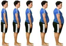Obesidad y desigualdad